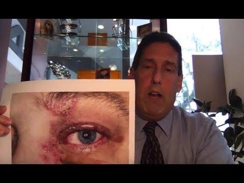 Shingles And The Eyes   Dr. Alan Mendelsohn