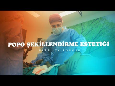 VÜCUT ŞEKİLLENDİRME AMELİYATI | Bölüm: 11 Brezilya Poposu Ameliyatı - Op. Dr. Çetin Duygu