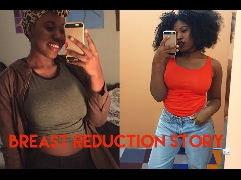A Very Detailed Breast Reduction Story!