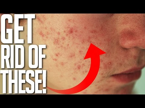 hqdefault - Red Acne Scars On Chin