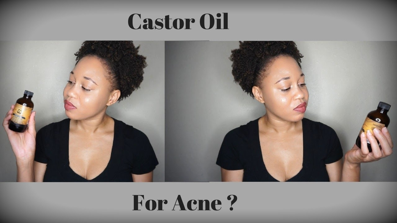 How To Treat Acne Using Castor Oil