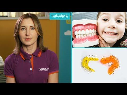 Какие коронки на зубы лучше ставить, какие бывают виды