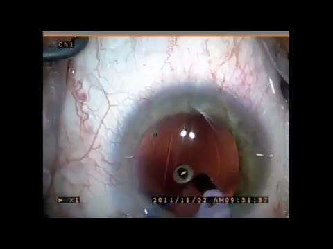 Cataract Surgery Recovery Time Off Work Youtube