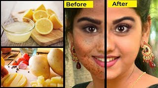 How to Remove Dark Spots in the Face  - Tamil Beauty Tips