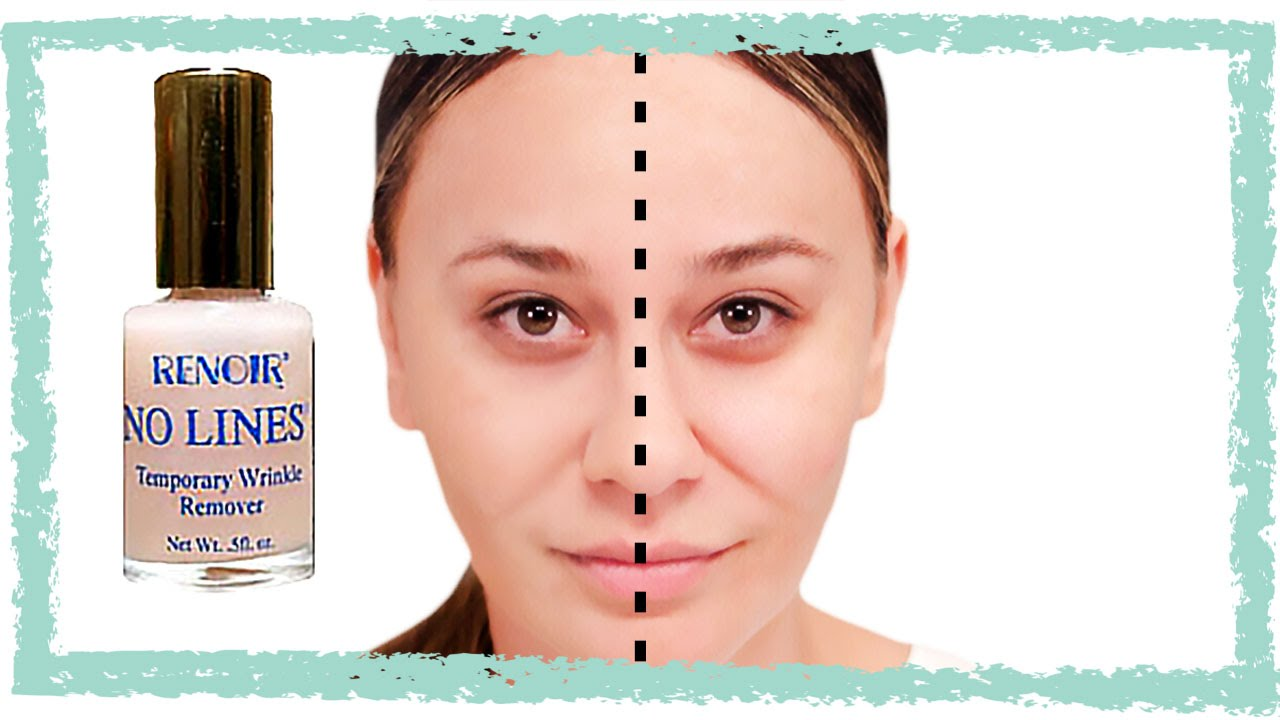 No Lines Temporary Wrinkle Remover - Better Than Botox?