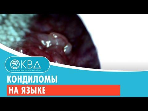 Кондиломы на языке. Клинический случай №6