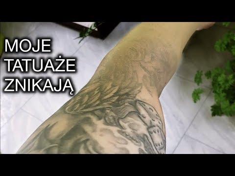 Mój Tatuaż Znika Projekt Ink Dermacol