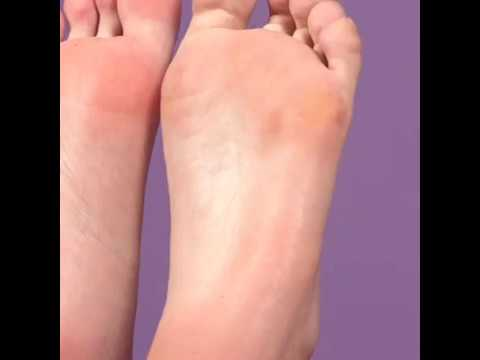 Foot peeling spray – It can make your feet like baby's