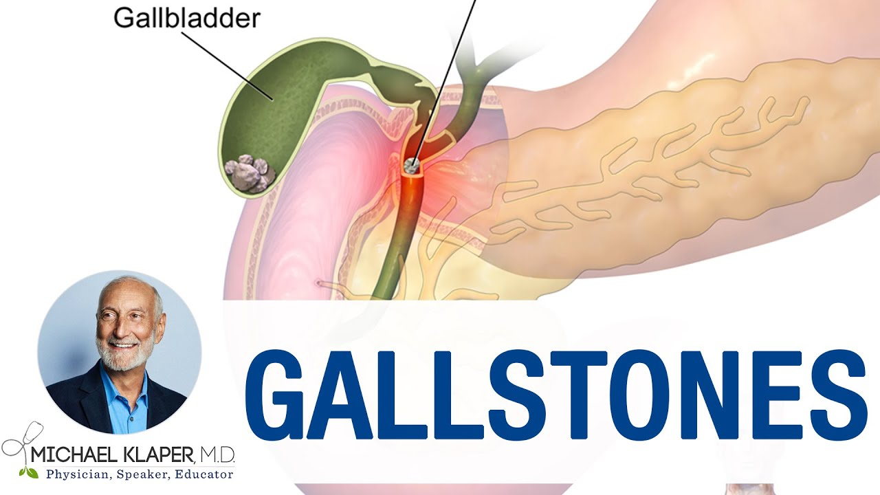 can a vegan diet cause gallstones