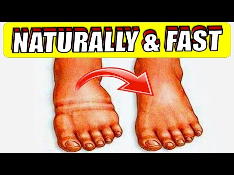 How To Get Rid Of Water Retention Fast In The Body Naturally