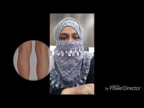 hijama din vene varicoase laser de la venele varicoase