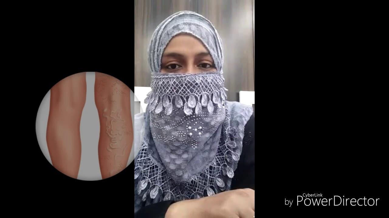 hijama cu puncte varicoase