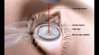 Eyes laser surgery  INFECTION CONTROL HEALTH EDUCATION URDU / HINDI