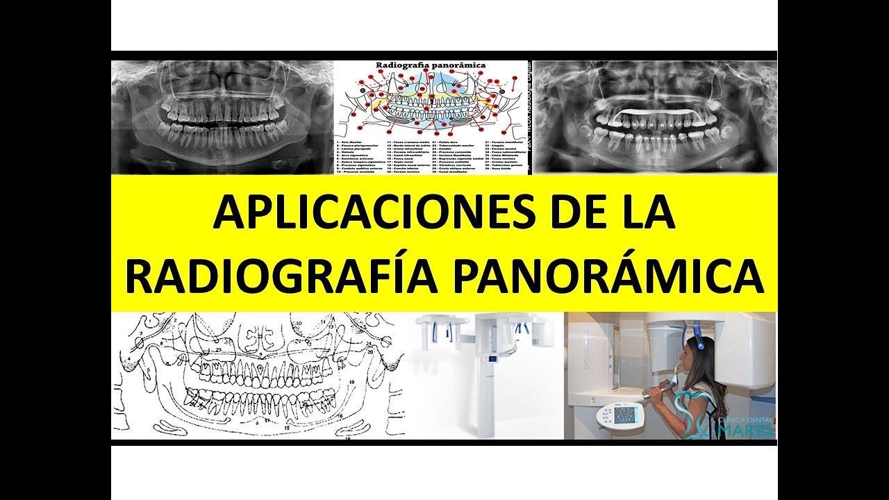 RADIOGRAFÍA PANORÁMICA Y SUS APLICACIONES EN ODONTOLOGÍA\