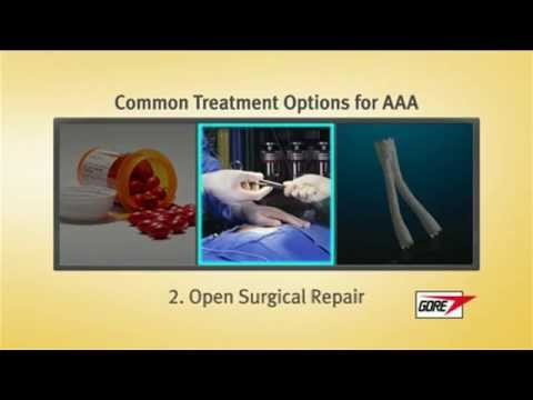 Treatment options for Abdominal Aortic Aneurysms (AAA) at Mount Sinai Beth Israel in NYC