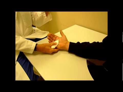 Dupuytren's contracture cord rupture - YouTube