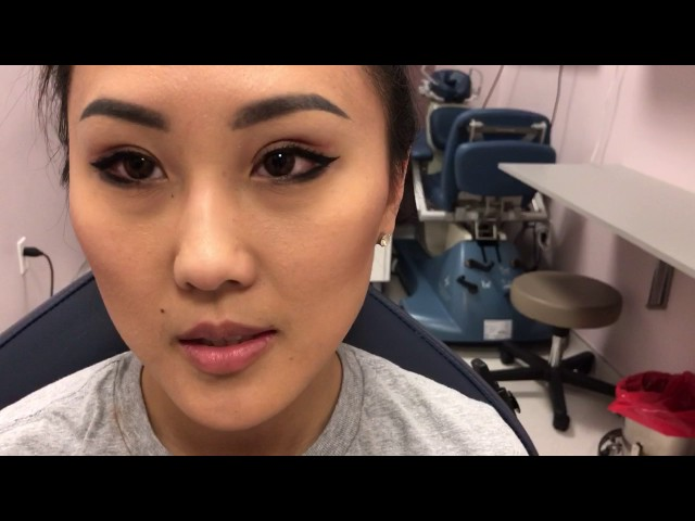 Dallas Asian Double Eyelid Blepharoplasty 5 Weeks Out