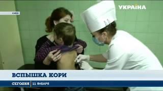 В Киеве количество заболевших корью увеличилось до 66-ти человек