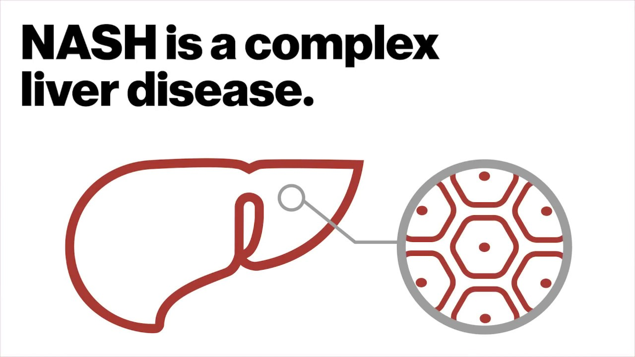 Counting on combos for complex liver diseases | The Genomics