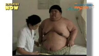 He lost 80kg in 100 days (Acupuncture for Weight Loss Pt 4)