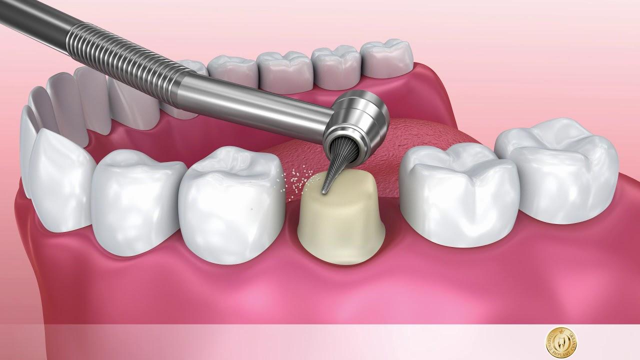 Zahnkrone Keramikaufsatz Auf Dem Zahnstumpf