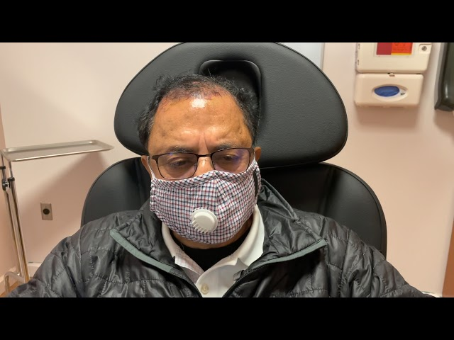 Dallas Hair Transplant Surgery Testimonial One Day Out