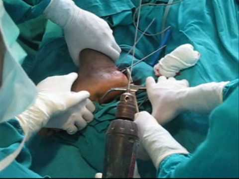 calcaneal fracture closed reduction Surgery.wmv