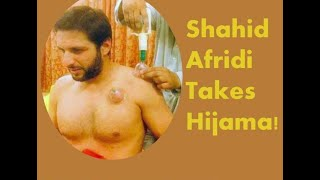 Video Hijama / Cupping Therapy Cricketers Shahid Afridi Umer Akmal download MP3, 3GP, MP4, WEBM, AVI, FLV Oktober 2018