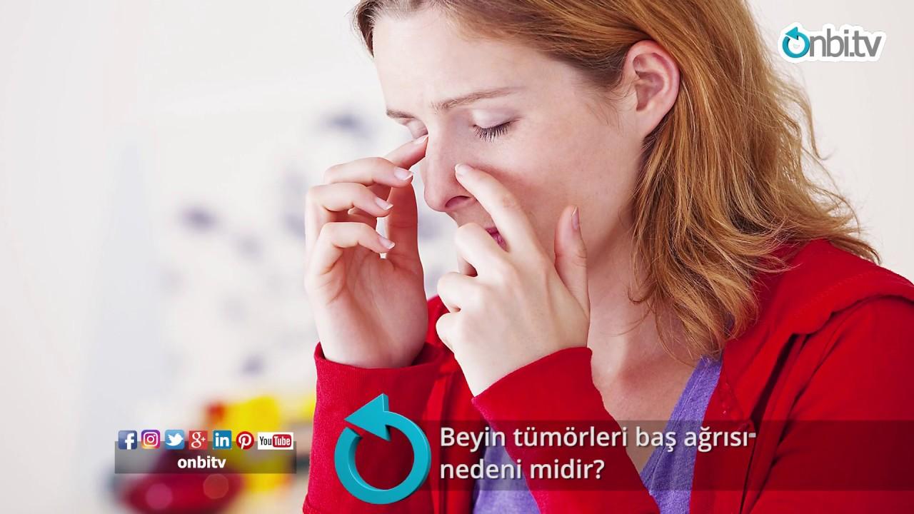 3 soruda migren testi İçin Tıklayınız