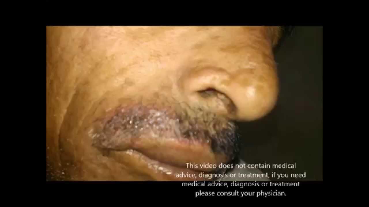 Hair Dye Allergic Reaction Youtube