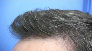 Hair Transplant by Dr Jerry Wong - 2932 Grafts - 2 Sessions