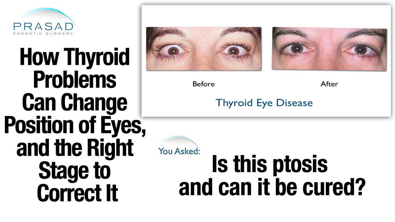 Graves Disease Thyroid
