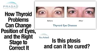 How Thyroid Eye Disease/Graves' Disease Affects Eye and Eyelid Position