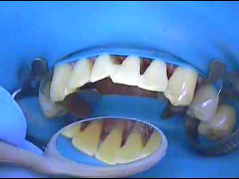 3. Dental Splinting - Conservative approach to strengthen teeth and reposition a lower incisor