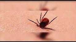 Lyme Disease | Chris's Story
