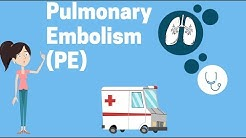 What Is a Pulmonary Embolism?