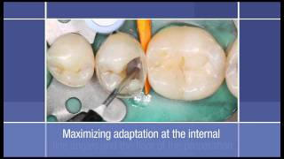 Posterior Restoration: How to use a Flowable Restorative as a Liner in a Class II Dental Restoration