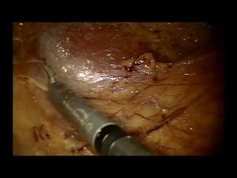 Right Robotic Total Nephrectomy