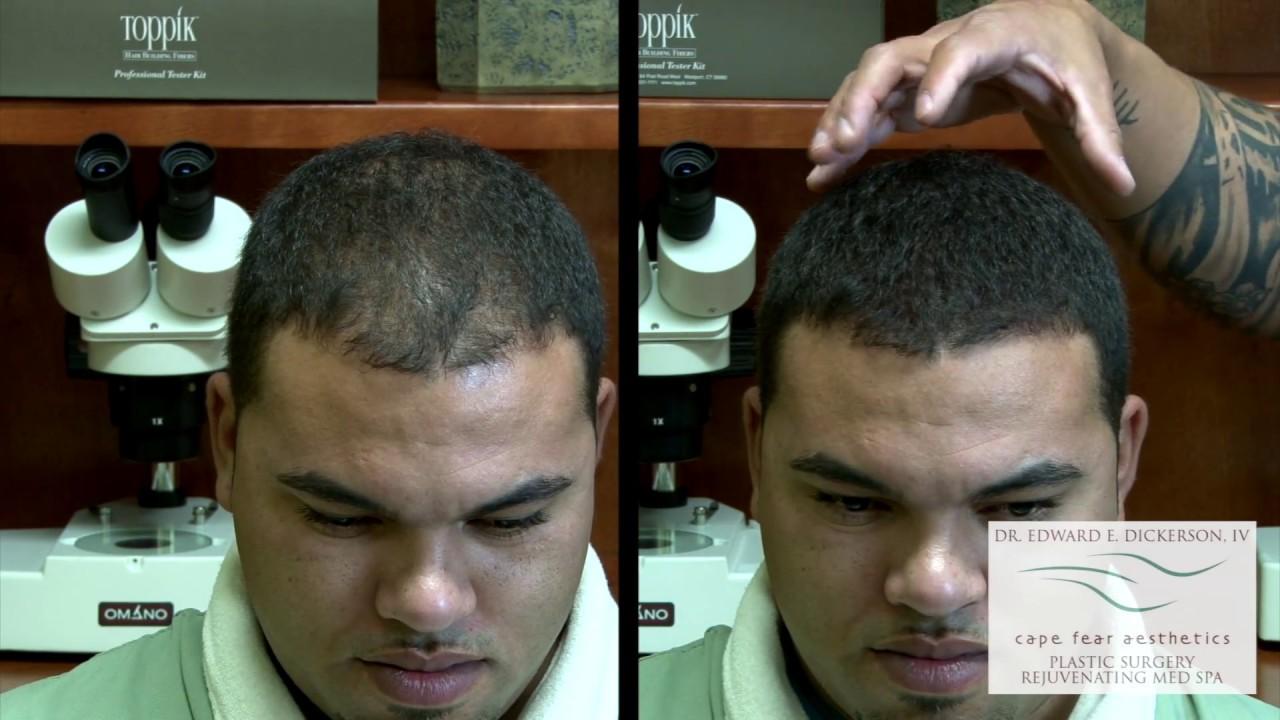 toppik-hair loss concealer - youtube