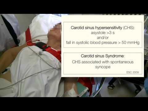 SYNCOPE sinus cardiac massage video