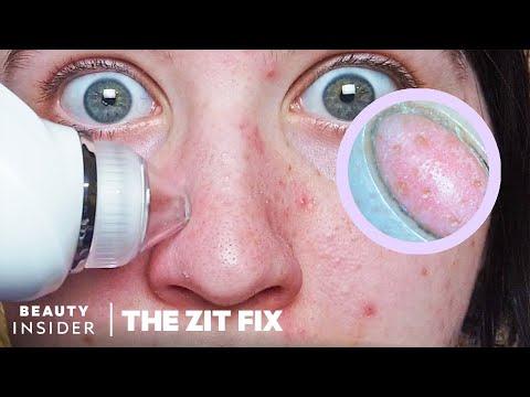 Pore Vacuum For Blackheads Has Built-In Microscope | The Zit Fix