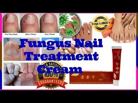 Top Nail Fungus Treatment📍Nail Infection Treatment📍 Nail Bed Fungus📍Nail Fungus Medicine
