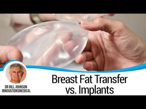 Breast Fat Transfer - Dr. Bill Johnson