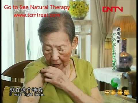[Zhonghua Yiyao] Magic Stone Needle Cure Disease_Hair loss and Deaf.wmv