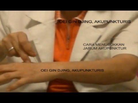TUSUK JARUM/ AKUPUNKTUR OLEH OEI GIN DJING, AKUPUNKTURIS