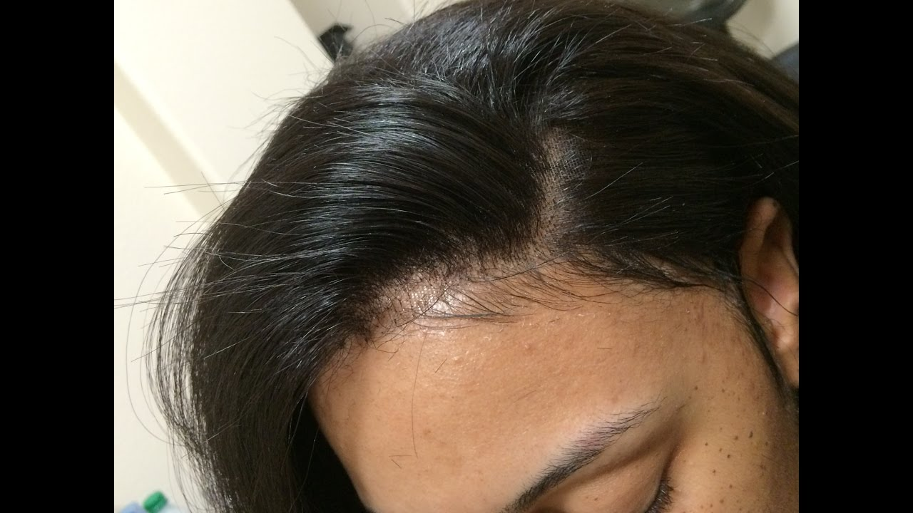 Best lace frontal layered bob hair makeover 5 stylist lee best lace frontal layered bob hair makeover 5 stylist lee los angeles hair salon pmusecretfo Image collections