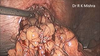 Laparoscopic Repair of Para Umbilical Hernia by Dr R K Mishra