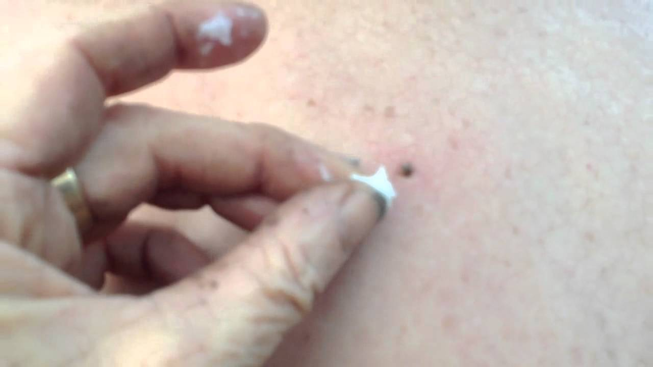 How to remove a tick from a person yourself
