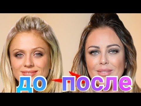 Юлия Началова до и после пластики фото 2018