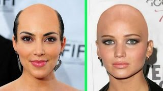 How Female Celebrities Would Look Like if They Were Bald